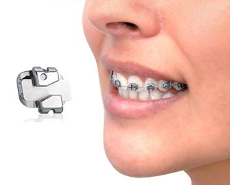 Ortodoncia baja fricción